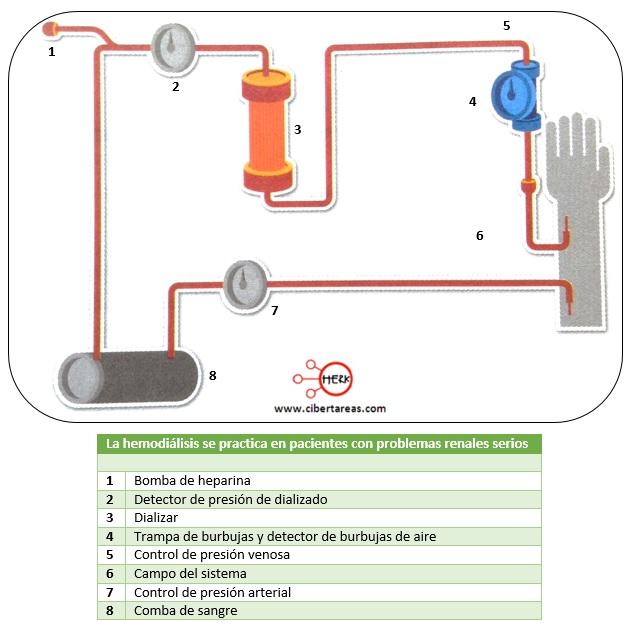 hemodialisis proceso de la hemodialisis